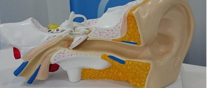 tratamiento hipoacusia neurosensorial